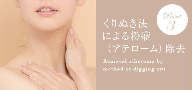 くり抜き法による粉瘤(アテローム)除去