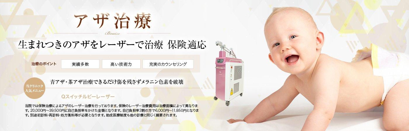 アザ治療 BRUISE (INSURANCE) 青アザ・茶アザ治療 できるだけ傷を残さずメラニン色素を破壊・保険適応