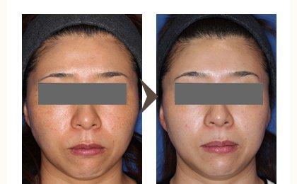 シミ治療の症例写真