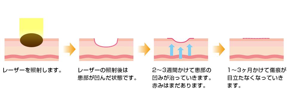 脂肪吸引イメージ図