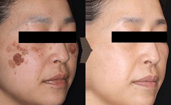 お顔全体のしみ・肌治療