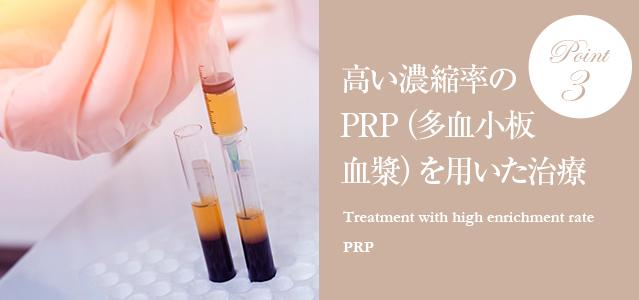 高い濃縮率のPRP(多血小板血漿)を用いた治療