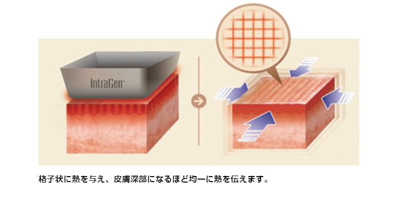 格子状に熱を与え、皮膚深部になるほど均一に熱を伝えます。