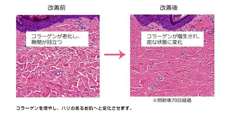 コラーゲンを増やし、ハリのあるお肌へと変化させます。